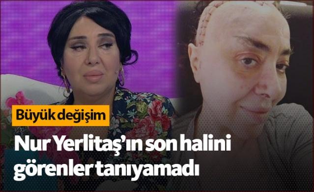 Nur Yerlitaş'ın son hali şaşırttı