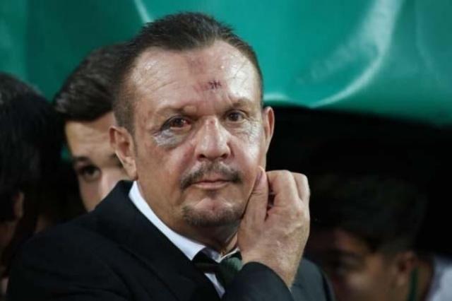 Denizlispor Başkanı Ali Çetin'i gören şok oldu
