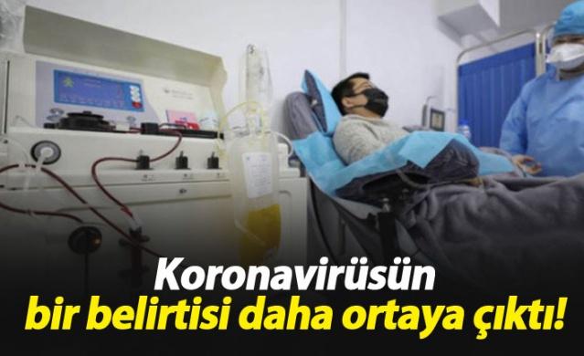 Koronavirüsün bir belirtisi daha ortaya çıktı