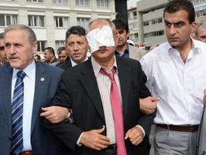 CHP Milletvekiline şok