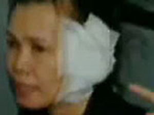 İş arkadaşının kulağını ısırıp koparttı