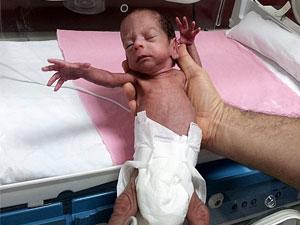 Trabzon'da mucize bebek hayata tutundu