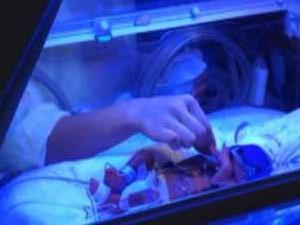 İkizler 8 gün arayla doğdu