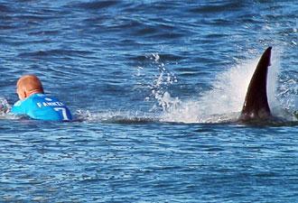 Şampiyon sörfçü köpekbalığı saldırısına uğradı
