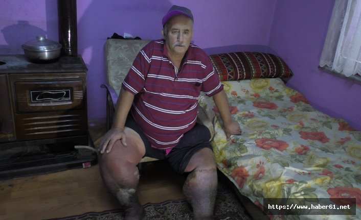 Fil hastası adam, sağlığına kavuşmanın hayalini kuruyor