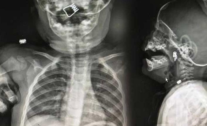 Röntgende çıkanı görünce gözlerine inanamadılar!