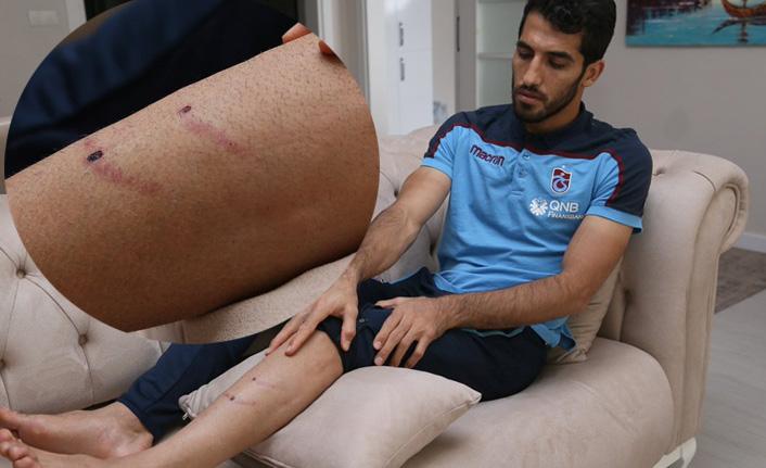 Amiri'nin bacağı bakın ne hale geldi?