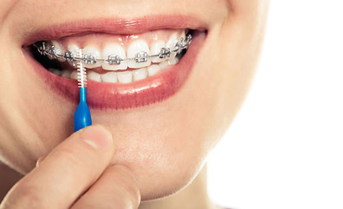Diş teli tedavisi görüyorsanız...