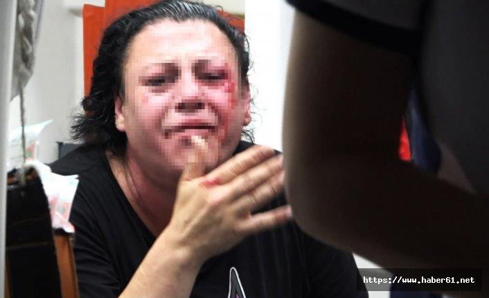 Eskort sitesinde tanıştığı kişiyi sokak ortasında dövdü