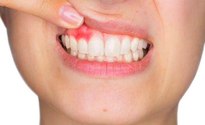 Yanlış diş fırçası kullanımı diş eti rahatsızlıklarına sebep oluyor