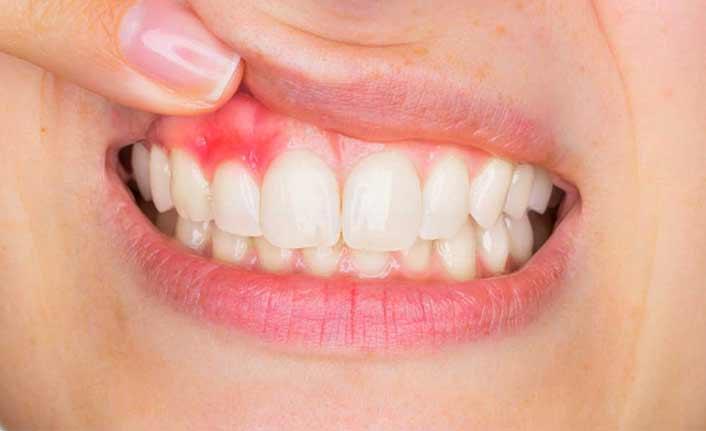 Diş eti hastalıklarına dikkat!