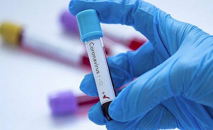 Hava sıcaklığı koronavirüsü böyle etkiliyor! Beklenen haber geldi