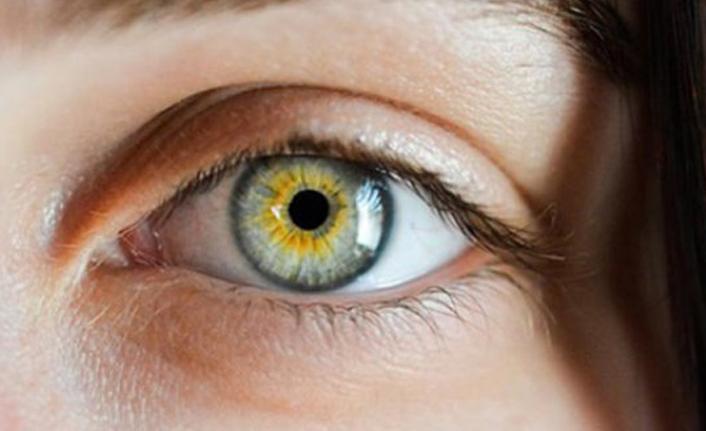 """""""Açık göz renginde sarı nokta hastalığı riski daha fazla"""""""