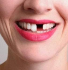 Eksik diş neyin habercisi?
