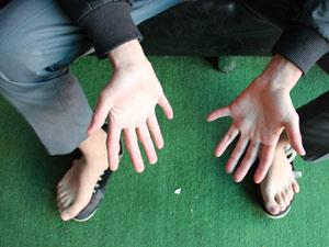 24 parmaklı genci gören hayret ediyor