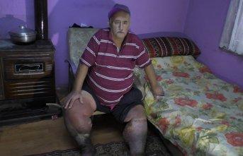 Fil hastası adam, sağlığına kavuşmanın hayalini...