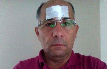 Gazeteciye evinin önünde saldırı