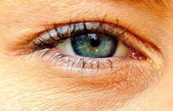 Gözlerde sarı nokta problemine dikkat