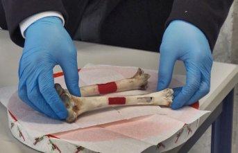 Lületaşı ve yumurta kabuğundan yapay kemik dokusu üretti