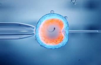 Kıbrıs'ta Uygulanan Tüp Bebek Tedavileri