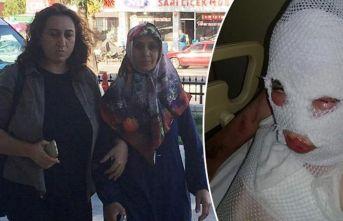 Komşularına kezzapla saldıran kadına hapis cezasında 'Pişman olmama' vurgusu