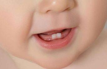 İşte  diş gelişimine iyi gelen besinler