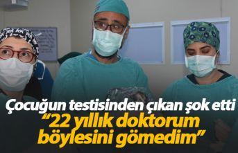 Çocuğun testisinden çıkan, doktoru da şok etti