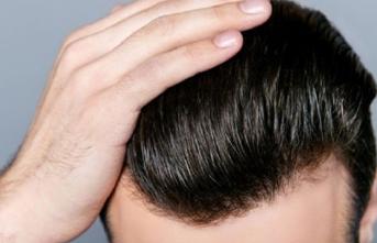 Saç ektirenlerin bilmesi gereken önemli hususlar