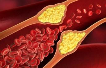 İşte vücut için kolesterolün önemi...