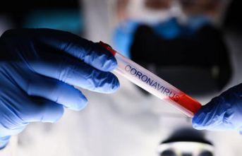 Koronavirüsün iki kuzeni ortaya çıktı!
