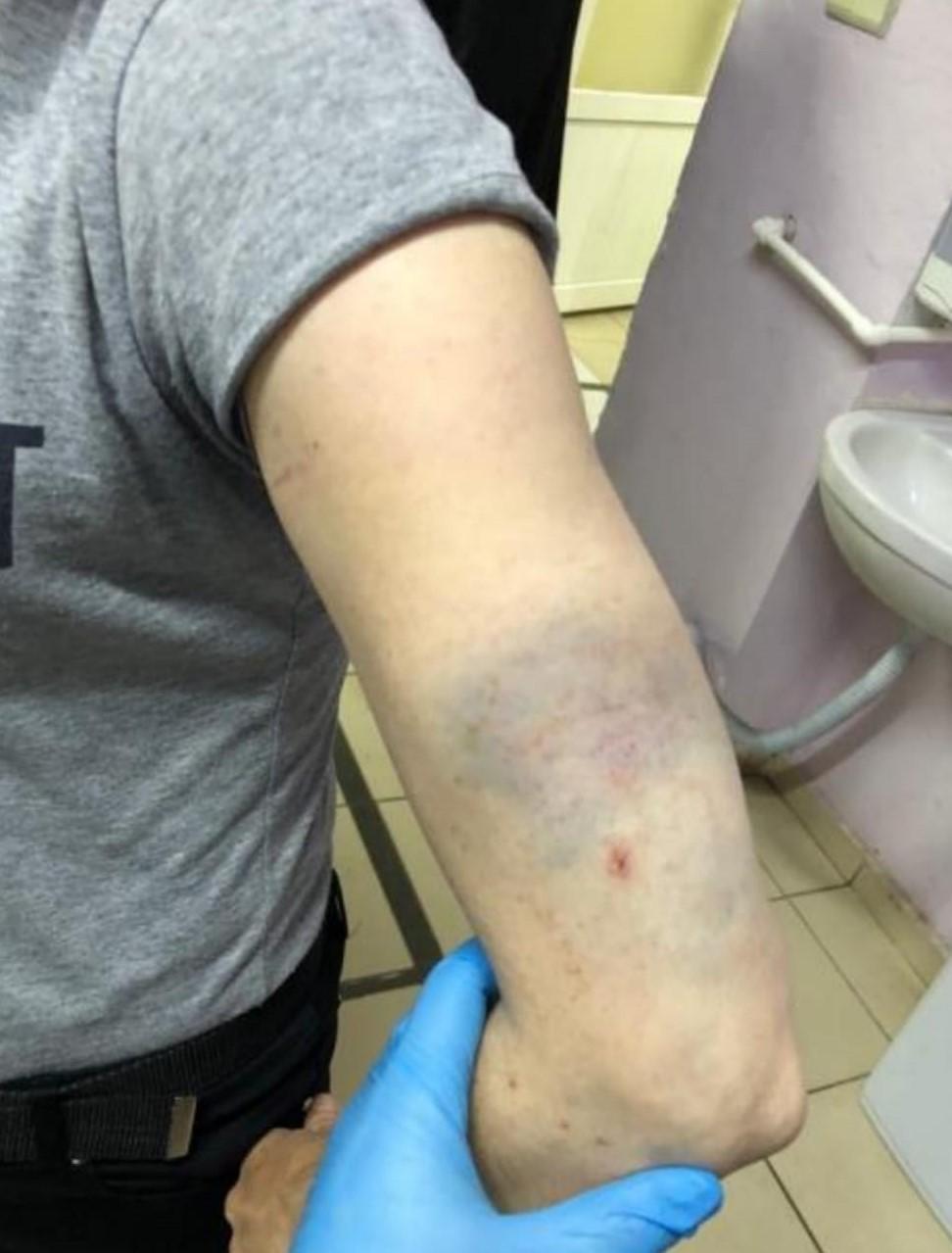 Ordu'da hasta yakınları sağlık çalışanlarına saldırdı