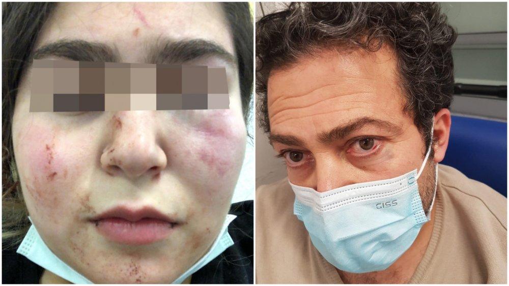 Almanya'da polis 17 yaşındaki Türk kızını ve babasını hastanelik etti