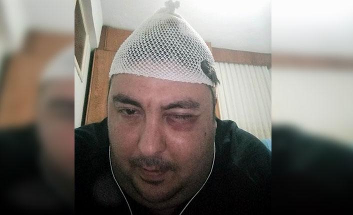 Samsun'da avukatı sokak ortasında darp ettiler
