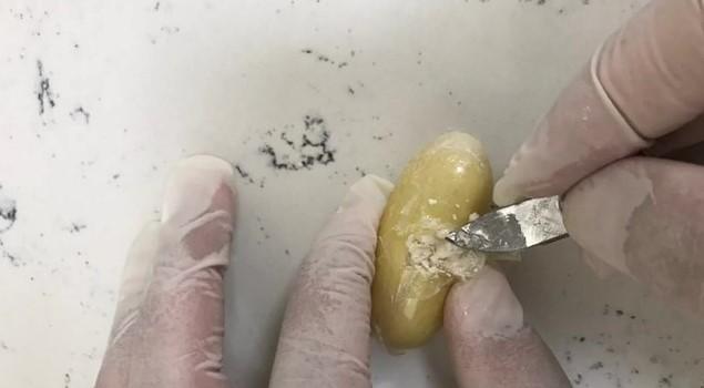 Yolcunu midesinden bin 844 gram kokain çıktı