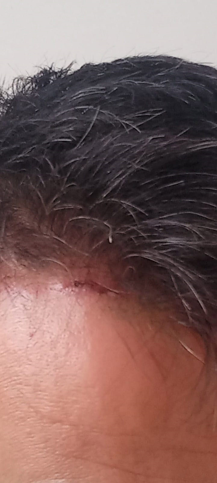 Trabzon'da antrenörlerin futbol sohbetinde levyeli kavga çıktı: 2 yaralı