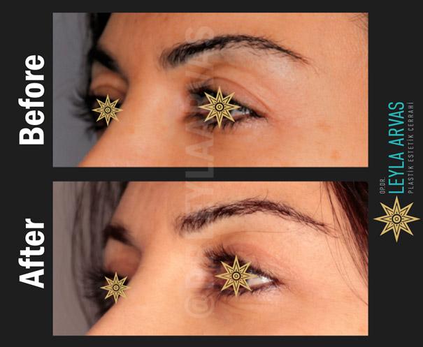Göz Kapağı Estetiği Nedir? Göz Kapağı Estetiği Ameliyatı Nasıl Yapılır?