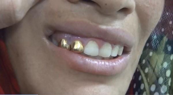 Son model telefonlu, altın dişli dilenciler şaşırttı!