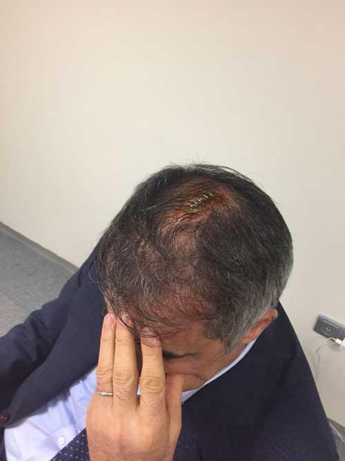 Derbide olay: Şenol Güneş'in kafasına madde attılar