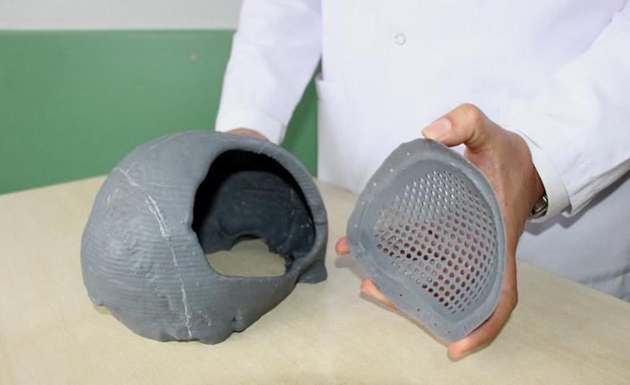 Karadeniz'de 3D ile kafatası düzeltildi