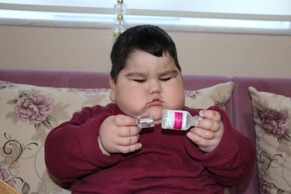 2 yaşında 37 kiloluk Yağız, devlet desteğiyle kilo vermeye başladı