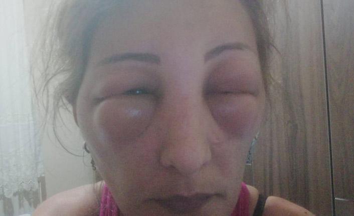 yalovada kadın kuaförde hastanelik oldu