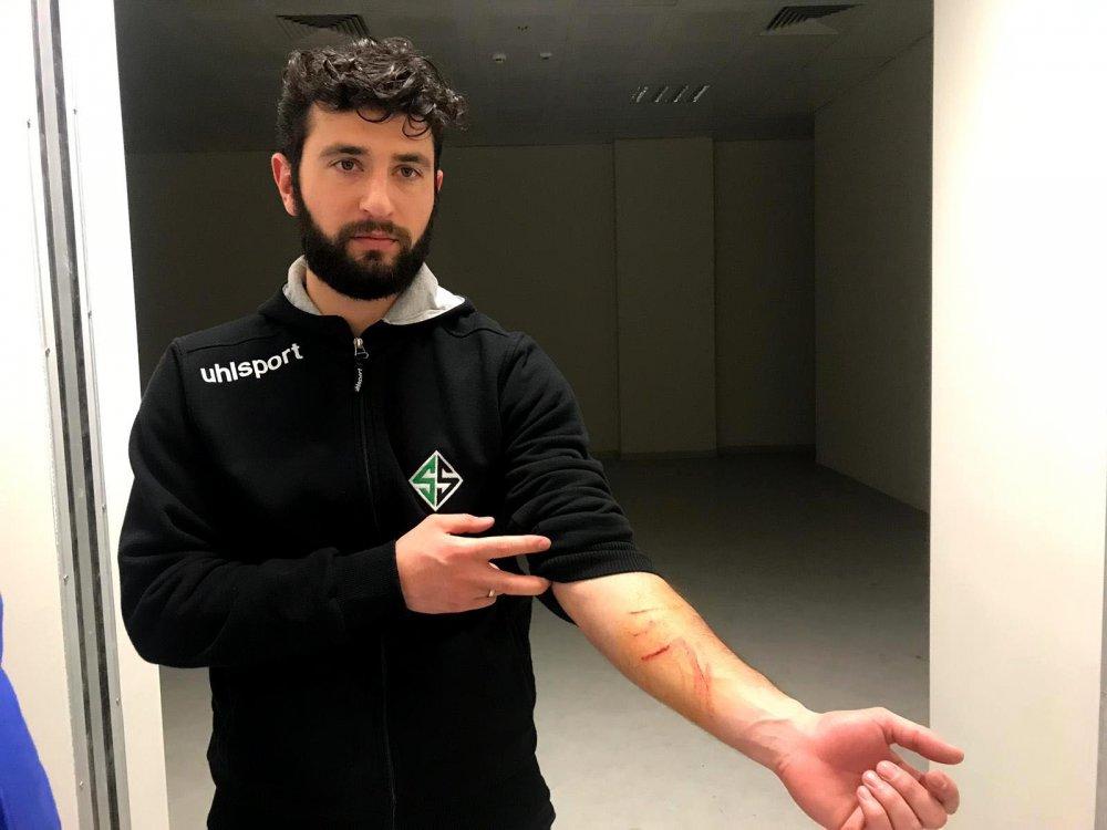 Maçta Jiletli saldırı - Futbolcuları tek tek yaraladı