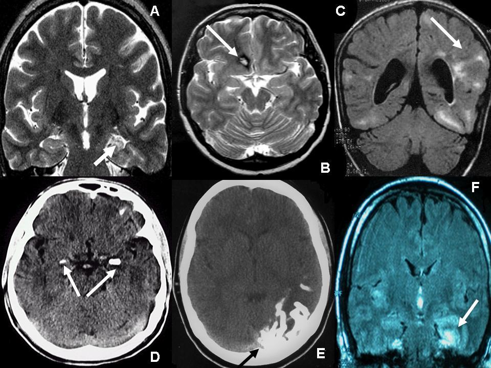 Temporal Lob Epilepsi nedir? Temporal Lob Epilepsi belirtileri nelerdir?