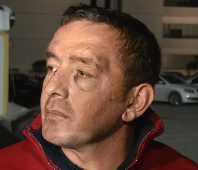 Trafik magandaları, 2 gaziyi ve yakınlarını hastanelik etti